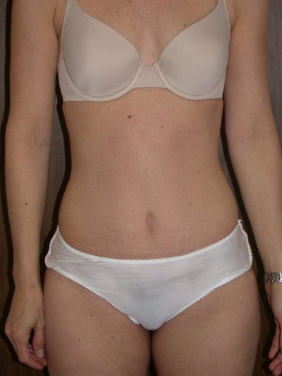 Tummy Tuck Gallery - Patient 4756931 - Image 2
