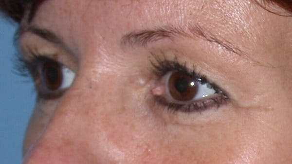 Eyelid Lift Gallery - Patient 4756929 - Image 3