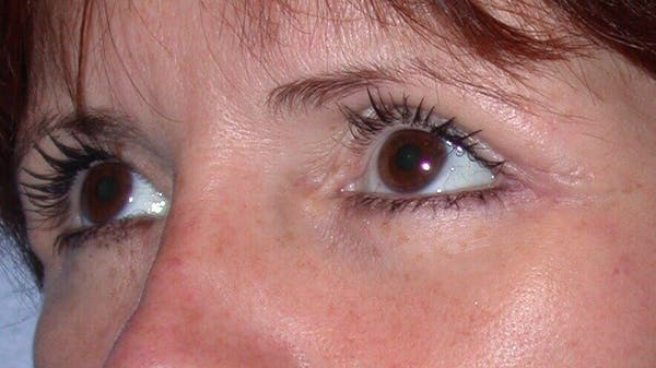 Eyelid Lift Gallery - Patient 4756929 - Image 4