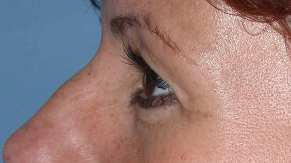 Eyelid Lift Gallery - Patient 4756929 - Image 5