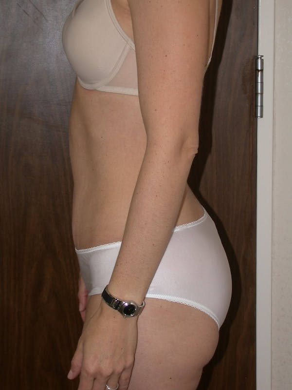 Tummy Tuck Gallery - Patient 4756931 - Image 4