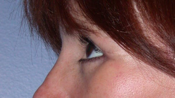 Eyelid Lift Gallery - Patient 4756929 - Image 6
