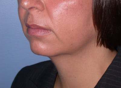 Chin Augmentation Gallery - Patient 4756932 - Image 1