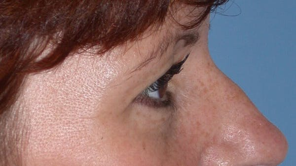 Eyelid Lift Gallery - Patient 4756929 - Image 7