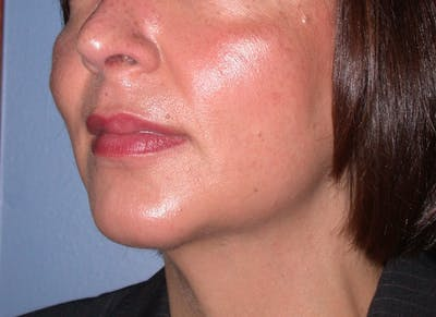 Chin Augmentation Gallery - Patient 4756932 - Image 2