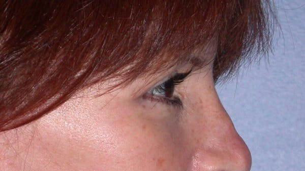 Eyelid Lift Gallery - Patient 4756929 - Image 8