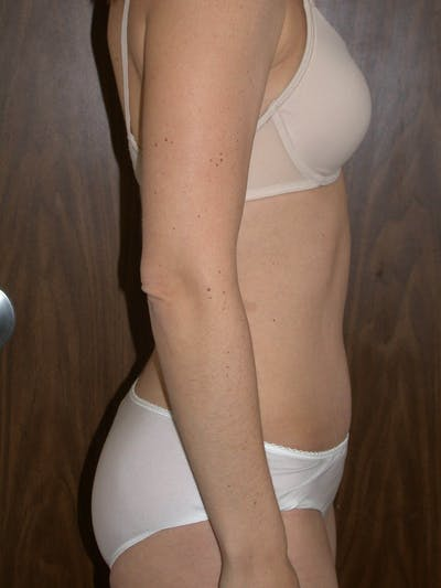 Tummy Tuck Gallery - Patient 4756931 - Image 6