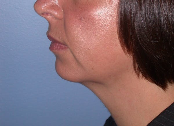 Chin Augmentation Gallery - Patient 4756932 - Image 3