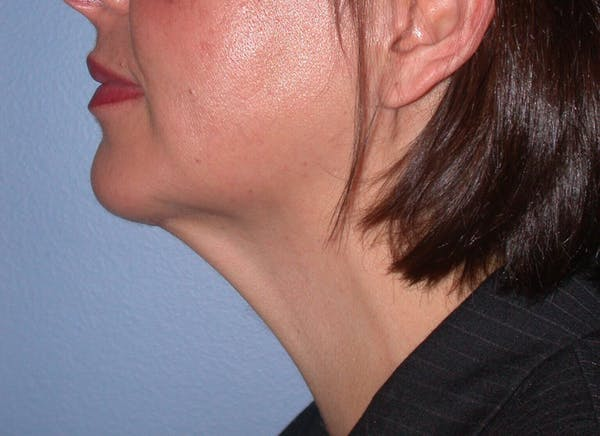 Chin Augmentation Gallery - Patient 4756932 - Image 4