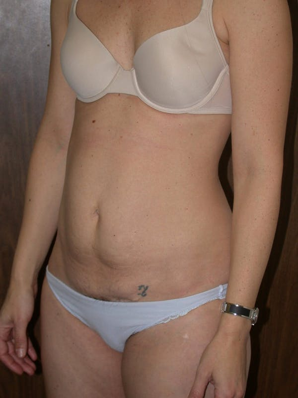 Tummy Tuck Gallery - Patient 4756931 - Image 7