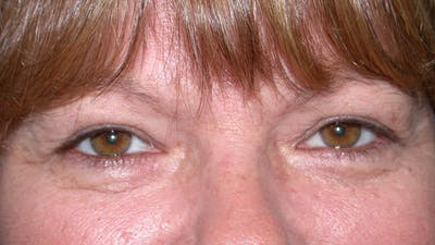 Eyelid Lift Gallery - Patient 4756937 - Image 1