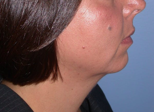 Chin Augmentation Gallery - Patient 4756932 - Image 5