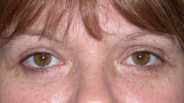 Eyelid Lift Gallery - Patient 4756937 - Image 2