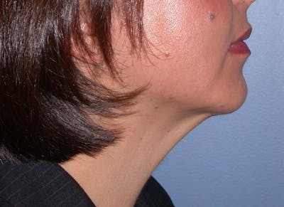 Chin Augmentation Gallery - Patient 4756932 - Image 6