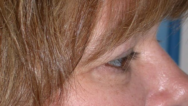 Eyelid Lift Gallery - Patient 4756937 - Image 3