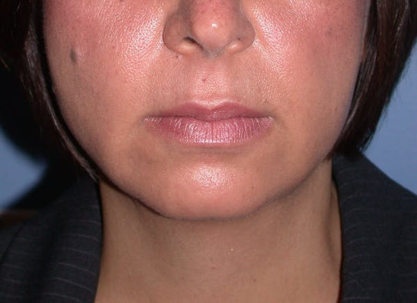 Chin Augmentation Gallery - Patient 4756932 - Image 7