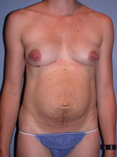 Tummy Tuck Gallery - Patient 4756938 - Image 1