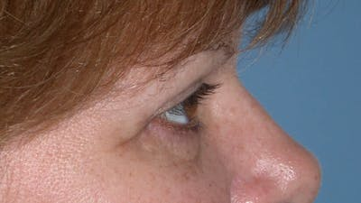 Eyelid Lift Gallery - Patient 4756937 - Image 4