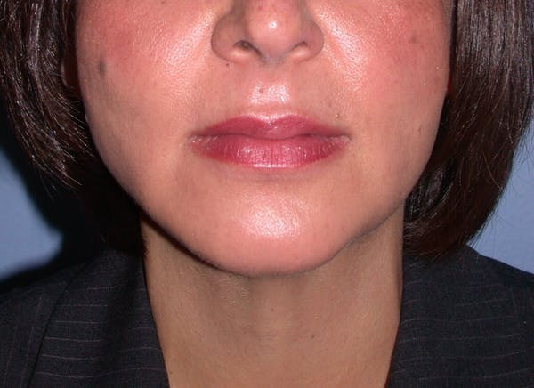 Chin Augmentation Gallery - Patient 4756932 - Image 8