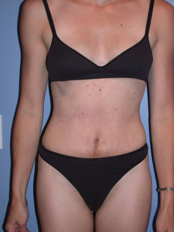 Tummy Tuck Gallery - Patient 4756938 - Image 2