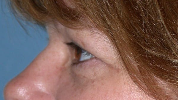 Eyelid Lift Gallery - Patient 4756937 - Image 5