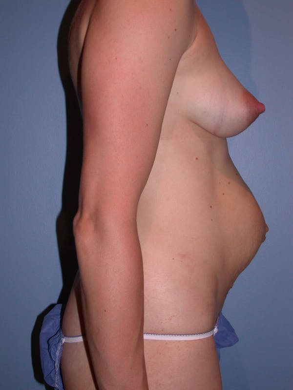 Tummy Tuck Gallery - Patient 4756938 - Image 3
