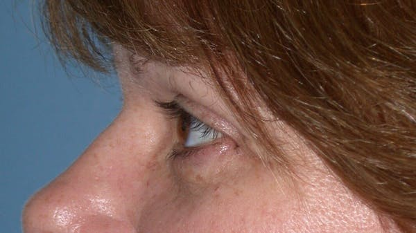 Eyelid Lift Gallery - Patient 4756937 - Image 6