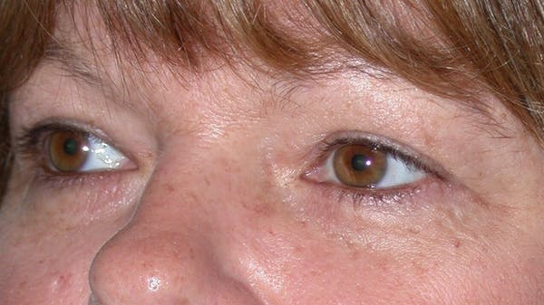 Eyelid Lift Gallery - Patient 4756937 - Image 7