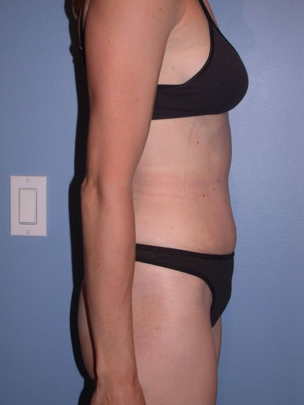 Tummy Tuck Gallery - Patient 4756938 - Image 4