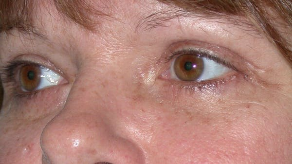 Eyelid Lift Gallery - Patient 4756937 - Image 8