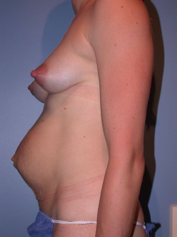 Tummy Tuck Gallery - Patient 4756938 - Image 5
