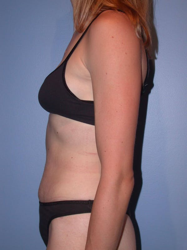 Tummy Tuck Gallery - Patient 4756938 - Image 6