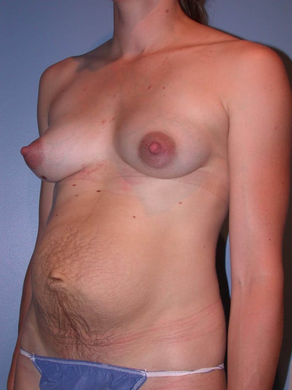 Tummy Tuck Gallery - Patient 4756938 - Image 7