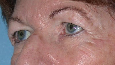 Eyelid Lift Gallery - Patient 4756940 - Image 1