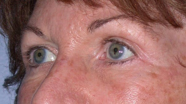 Eyelid Lift Gallery - Patient 4756940 - Image 2