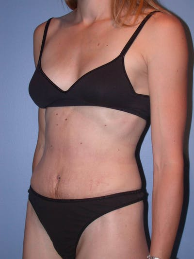 Tummy Tuck Gallery - Patient 4756938 - Image 8