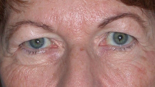 Eyelid Lift Gallery - Patient 4756940 - Image 3