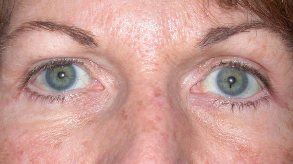 Eyelid Lift Gallery - Patient 4756940 - Image 4