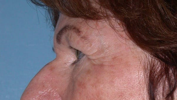 Eyelid Lift Gallery - Patient 4756940 - Image 5