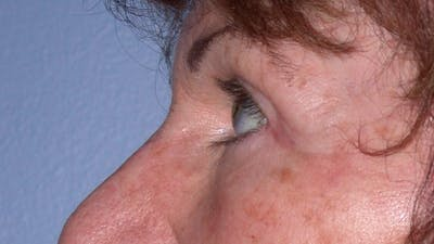 Eyelid Lift Gallery - Patient 4756940 - Image 6