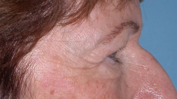 Eyelid Lift Gallery - Patient 4756940 - Image 7