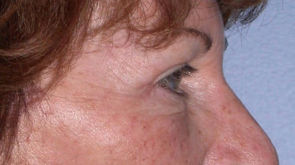 Eyelid Lift Gallery - Patient 4756940 - Image 8