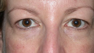 Eyelid Lift Gallery - Patient 4756943 - Image 1