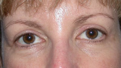 Eyelid Lift Gallery - Patient 4756943 - Image 2