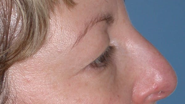 Eyelid Lift Gallery - Patient 4756943 - Image 3