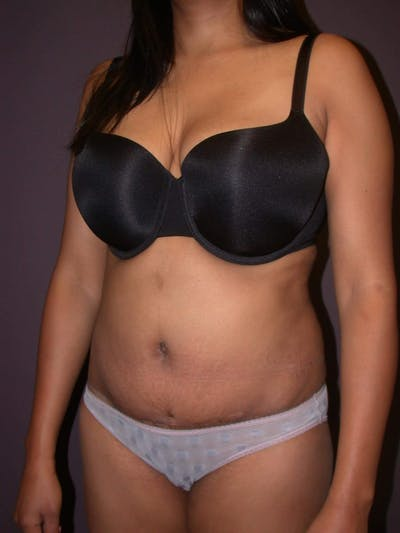 Tummy Tuck Gallery - Patient 4756942 - Image 8