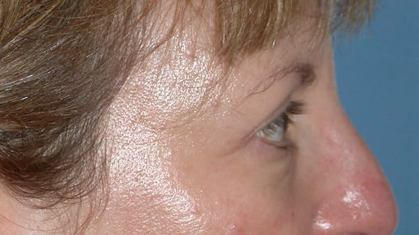 Eyelid Lift Gallery - Patient 4756943 - Image 4