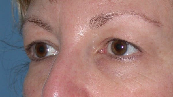 Eyelid Lift Gallery - Patient 4756943 - Image 5