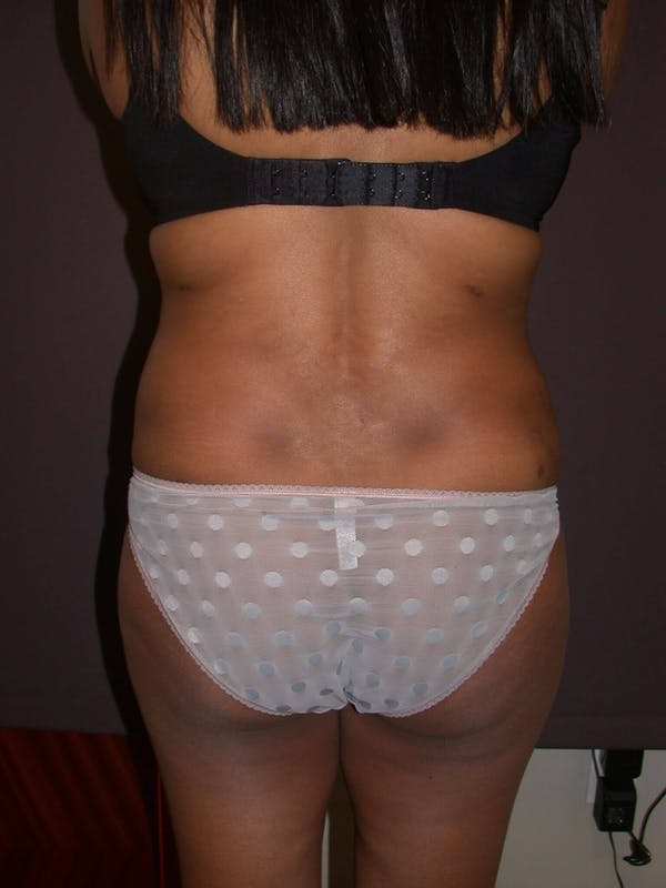 Tummy Tuck Gallery - Patient 4756942 - Image 10