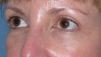 Eyelid Lift Gallery - Patient 4756943 - Image 6